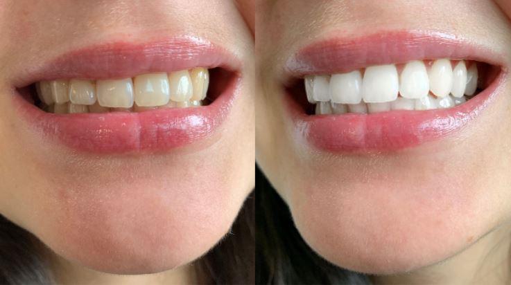 Blanchiment-dentaire-avant-aprés-esthetique-beauty-tech-one
